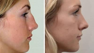 Пластическая операция на нос - Пластика - Каталог статей ...